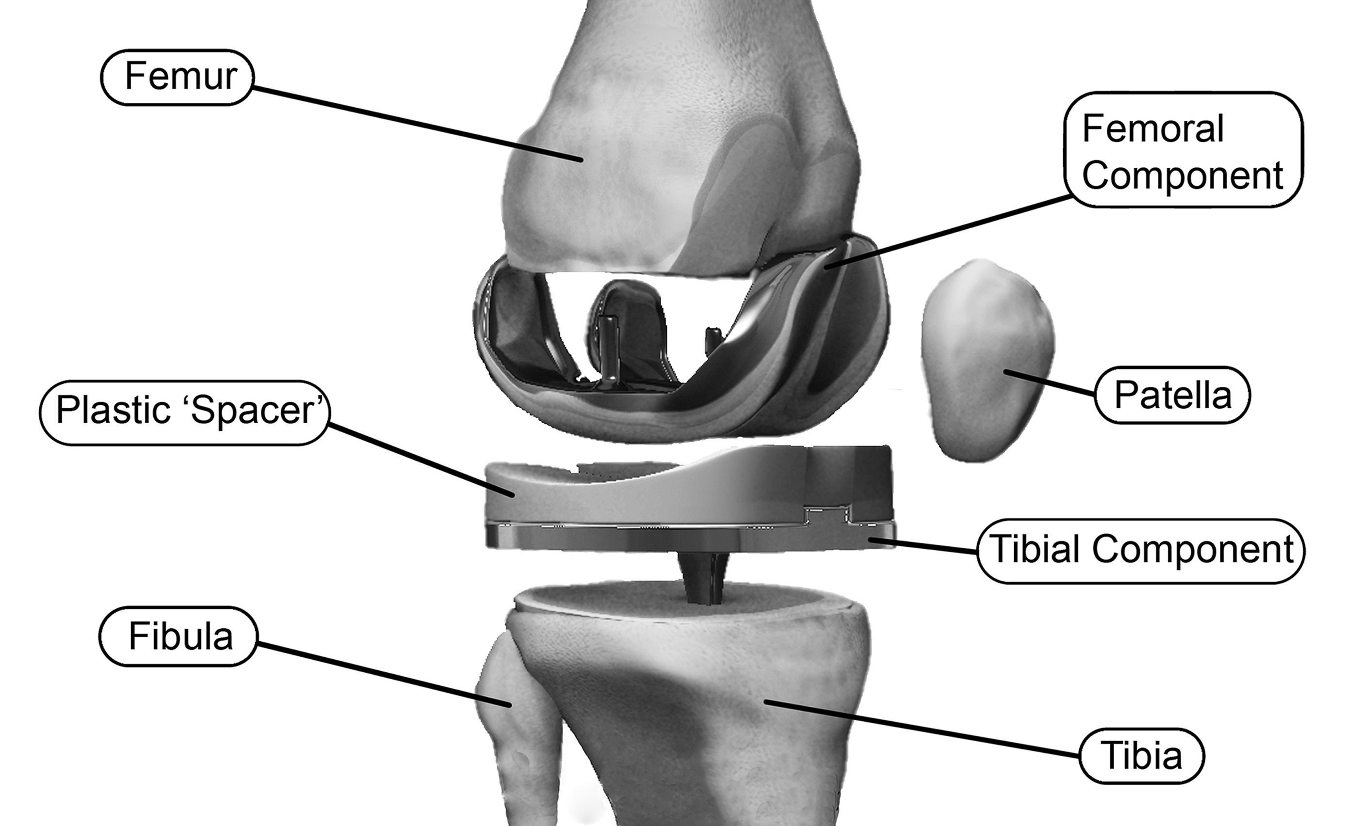 Expanded Blow-up of Knee Implant in Place